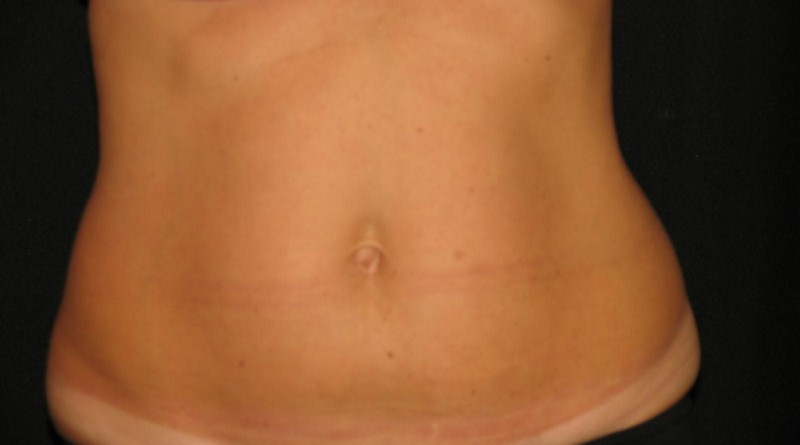 how-much-coolsculpting-cost