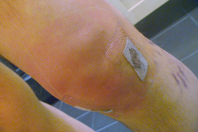 how-much-does-acl-reconstruction-cost