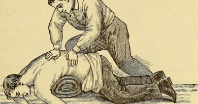 how-much-does-spinal-decompression-cost
